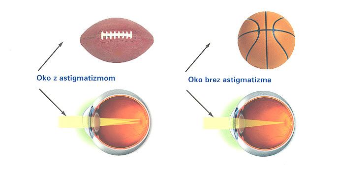 Astigmatizem - primerjava z normalnim vidom