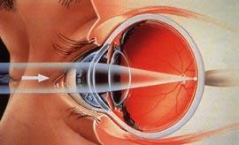 Primer astigmatizma