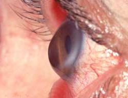 Očesne bolezni - keratokonus