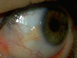 Primer očesne bolezni Pinguecula