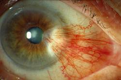 Primer očesne bolezni Pterigija